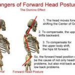 Causes of Neck and Shoulder Pain